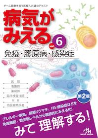 病気がみえる 6 免疫・膠原病・感染症 改訂第2版**9784896327205/メディックメディア/978-4-89632-720-5**