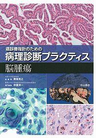 癌診療指針のための病理診断プラクティス 脳腫瘍**9784521736747/中山書店/中里洋一/978-4-521-73674-7**