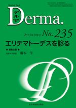 Monthly Book Derma 235 エリテマトーデスを診る**9784881178980/全日本病院出版会/藤本 学/978-4-88117-898-0**
