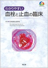 わかりやすい血栓と止血の臨床**9784524264490/南江堂/日本血栓止血学会編集/978-4-524-26449-0**