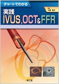 チャートでわかる実践IVUS  OCT&FFR**9784524260027/南江堂/大倉宏之/978-4-524-26002-7**