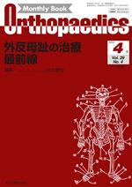 Monthly Book Orthopaedics 2016年4月 外反母趾の治療 最前線**4910021130463/全日本病院出版会/佐本憲宏/**