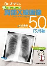 Dr.オヤマの見る読むわかる胸部X線画像50 応用編**9784787820099/診断と治療社/小山倫浩/978-4-7878-2009-9**