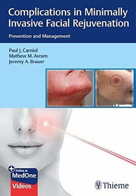 Complications in Minimally Invasive Facial Rejuvenation**Thieme/Paul J.Carniol/9781684200139**