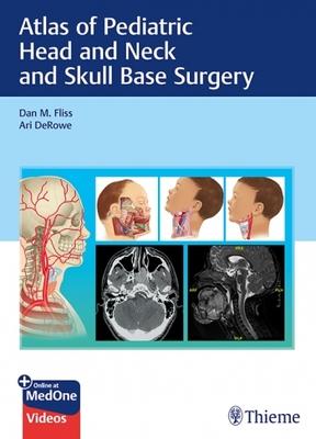 Atlas of Pediatric Head and Neck and Skull Base Surgery**Thieme/Dan M.Fliss/9783132414273**