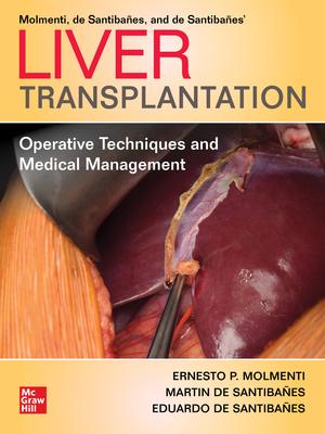 Liver Transplantation**McGraw-Hill/Ernesto P.Molmenti/9781260462517**