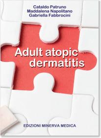 Adult Atopic Dermatitis**Edizioni Minerv/Cataldo Patruno/9788855320634/978-8-85532-063-4**