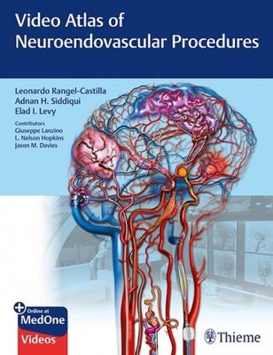 Video Atlas of Neuroendovascular Procedures**Thieme/Rangel-Castilla/9781684201181**