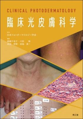 臨床光皮膚科学**南江堂/日本フォトダーマトロジー学会/9784524226085/978-4-524-22608-5**
