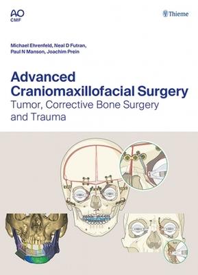 Advanced Craniomaxillofacial Surgery**Thieme/Ehrenfeld/Futran/Manson/Prein/9783132428393**
