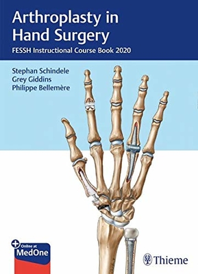 Arthroplasty in Hand Surgery**Thieme/Stephan F.Schindele/9783132431744**