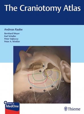 Craniotomy Atlas**Thieme/Raabe/9783132057913**
