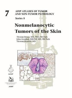 Nonmelanocytic Tumors of the Skin (AFIP Atlas of Tumor and Non-Tumor Pathology**AFIP/9781933477121**