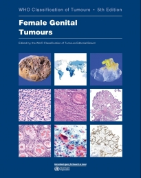 WHO Classification of Tumours 5th Ed.: Female Genital Tumours**WHO/9789283245049**