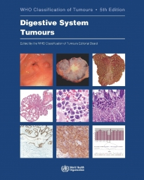 WHO Classification of Tumours 5th Ed.: Digestive System Tumours**9789283244998**