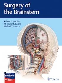 Surgery of the Brainstem**Thieme/Robert F.Spetzler/9781626232914**