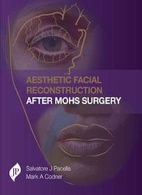 Aesthetic Facial Reconstruction After Mohs Surgery**JP/Salvatore J Pacella/9781907816918**