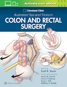 Illustrated Tips and Tricks in Colon and Rectal Surgery**9781975108250/Wolters Kl/Scott R.St/97819**