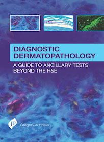 Diagnostic Dermatopathology**JP/Gregory A Hosler/9781909836129**