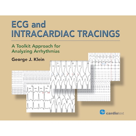 ECG and Intracardiac Tracings**Cardiotext/George J.Klein/9781942909255**
