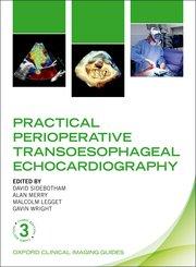 Practical Perioperative Transoesophageal Echocardiography  3rd Ed.**9780198759089/Oxford Uni/David**