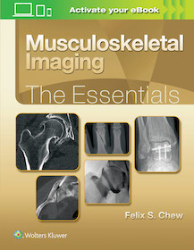 Musculoskeletal Imaging The Essentials**Wolters Kluwer/Felix S.Chew/9781496383839**