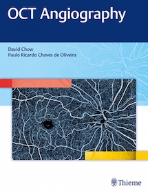 OCT Angiography**Thieme/David R.Chow/9781626234734**