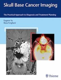 Skull Base Cancer Imaging**9781626232969/Thieme/Eugene Yu/9781626232969**