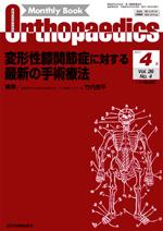 Monthly Book Orthopaedics 2013年4月 変形性膝関節症に対する最新の手術療法**4910021130432/全日本病院出版会//**