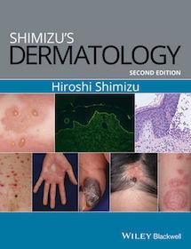 Shimizu's Dermatology**Wiley-Blackwell/Hiroshi Shimizu/9781119099055**