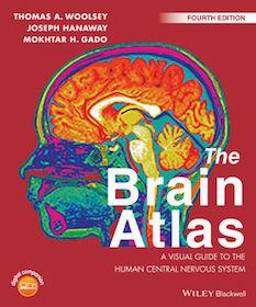 Brain Atlas**9781118438770/Wiley-Blac/Thomas A.W/978-1-118-43877-0**