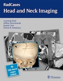 Radcases Head and Neck Imaging**Thieme/Gaurang Shah/9781604061932**