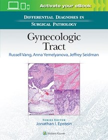 Differential Diagnoses in Surgical Pathology: Gynecologic Tract**9781496332943/Wolters Kl/Russell **
