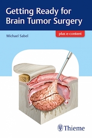 Getting Ready for Brain Tumor Surgery**9783132409576/Thieme/Michael Sa/9783132409576**