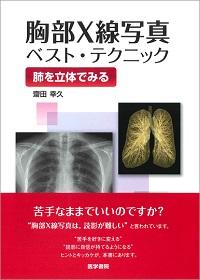 胸部X線写真ベストテクニック**9784260017688/医学書院/齋田幸久(聖路加国際/978-4-260-01768-8**
