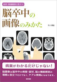 脳卒中の画像のみかた**9784260019484/医学書院/市川博雄(昭和大学藤/978-4-260-01948-4**