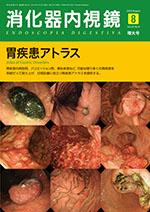消化器内視鏡 2016年8月 胃疾患アトラス**9784885634871/東京医学社//978-4-88563-487-1**