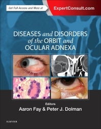 Diseases and Disorders of the Orbit and Ocular Adnexa**9780323377232/Elsevier/Aaron Fay/978-0-323-**
