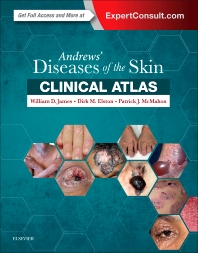 Andrew's Diseases of the Skin: Clinical Atlas**Elsevier/William D.James/9780323441964**