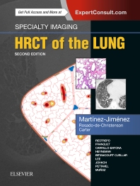HRCT of the Lung**9780323524773/Elsevier/Santiago M/978-0-323-52477-3**