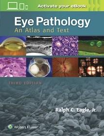 Eye Pathology**9781496337177/Wolters Kl/Ralph C.Ea/9781496337177**