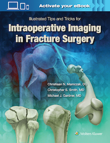 Illustrated Tips and Tricks for Intraoperative Imaging in Fracture Surgery**9781496328960/Wolters **