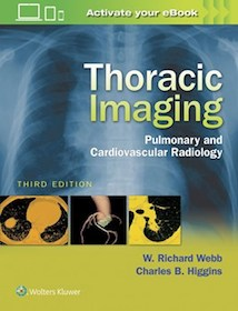 Thoracic Imaging**9781496321046/Wolters Kl/W.R.Webb &/978-1-4963-2104-6**