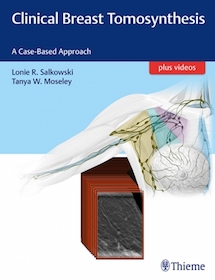Clinical Breast Tomosynthesis**Thieme/Lonie R.Salkowski/9781626232082**