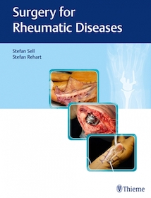 Surgery for Rheumatic Diseases**Thieme/Stefan Sell/9783132400078**